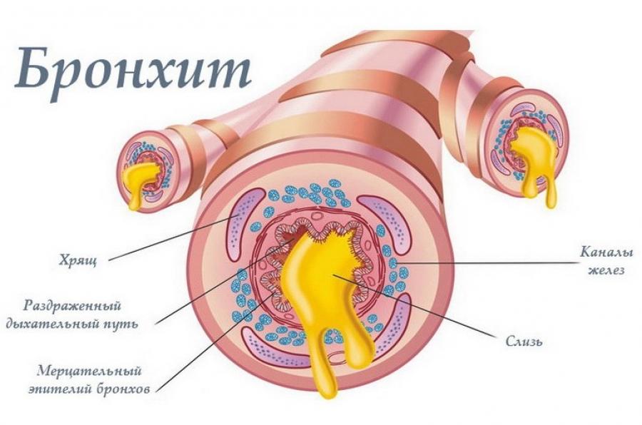 Как возникает острый бронхит, как он протекает, какие могут возникнуть осложнения. Главные методики лечения, включая народные и традиционные средства