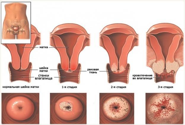 Сколько живут при раке шейки матки — продолжительность жизни в зависимости от стадий развития рака